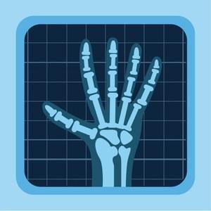 """Рентгенодиагностический комплекс КРТ-""""МАКСИМА""""."""